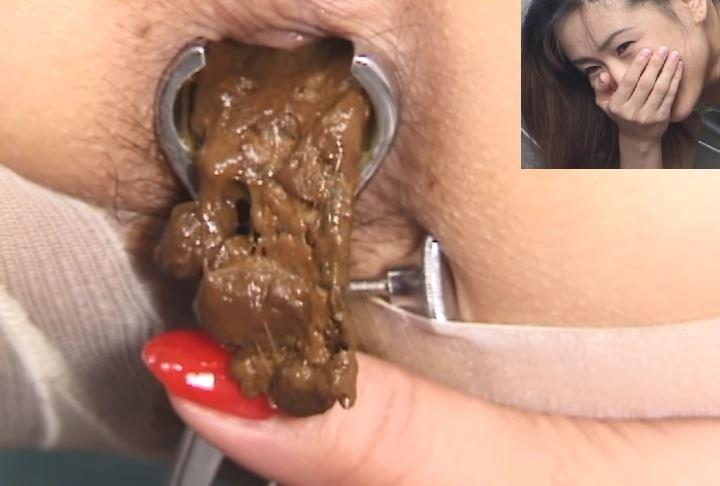 Uncensored closeup defecation medical scat fetish.